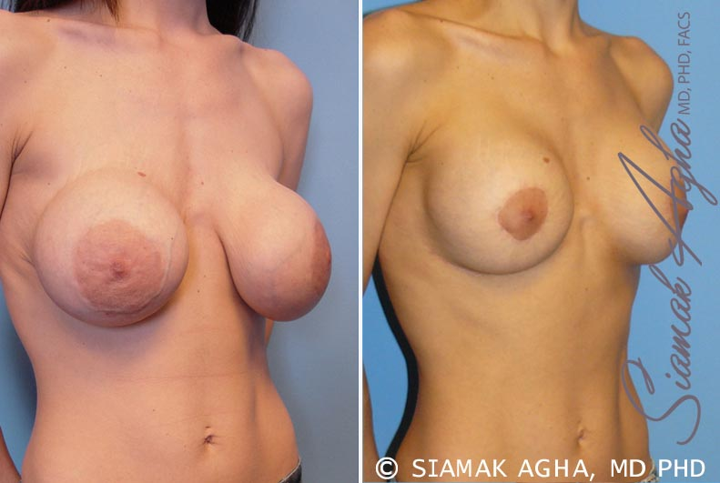 Orange County Newport Beach Breast Augmentation Revision 5 Front Right View