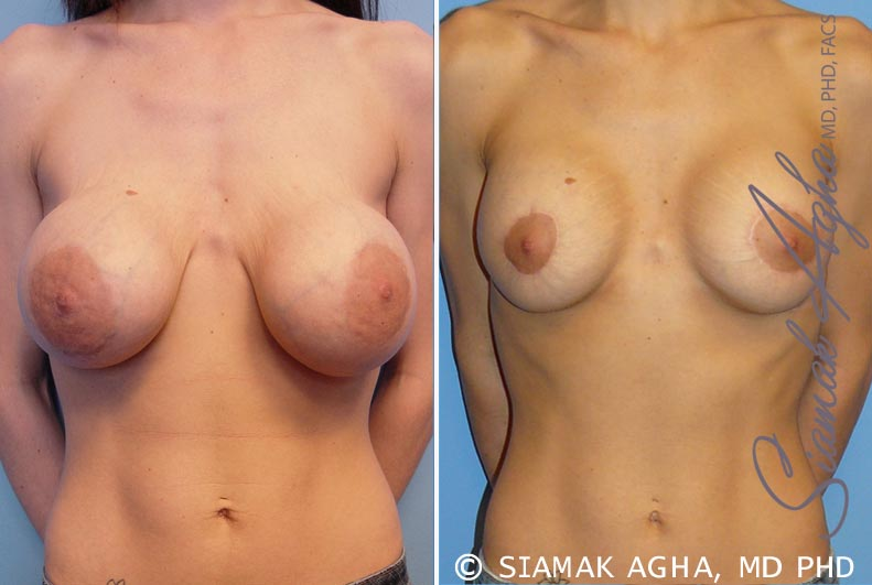 Orange County Newport Beach Breast Augmentation Revision 5 Front View
