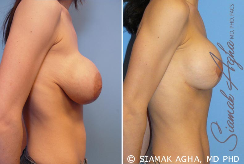 Orange County Newport Beach Breast Augmentation Revision 5 Right View