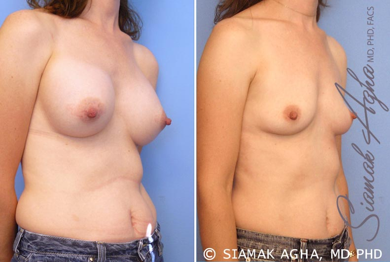 Orange County Newport Beach Breast Augmentation Revision 6 Front Right View