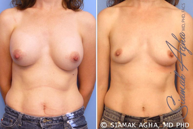 Orange County Newport Beach Breast Augmentation Revision Patient 6
