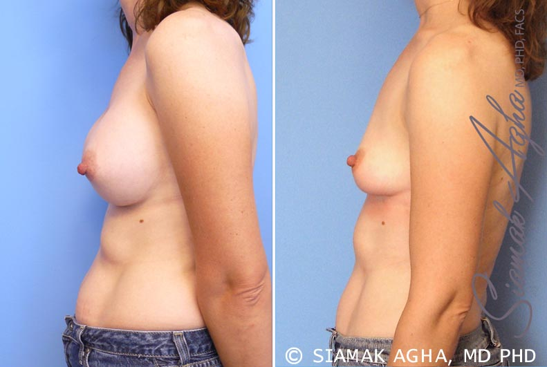 Orange County Newport Beach Breast Augmentation Revision 6 Left View