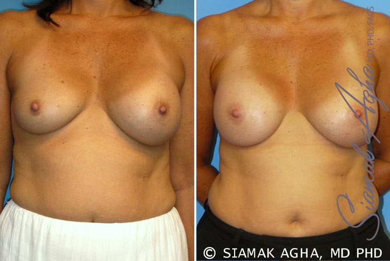 Orange County Newport Beach Breast Augmentation Revision Patient 7