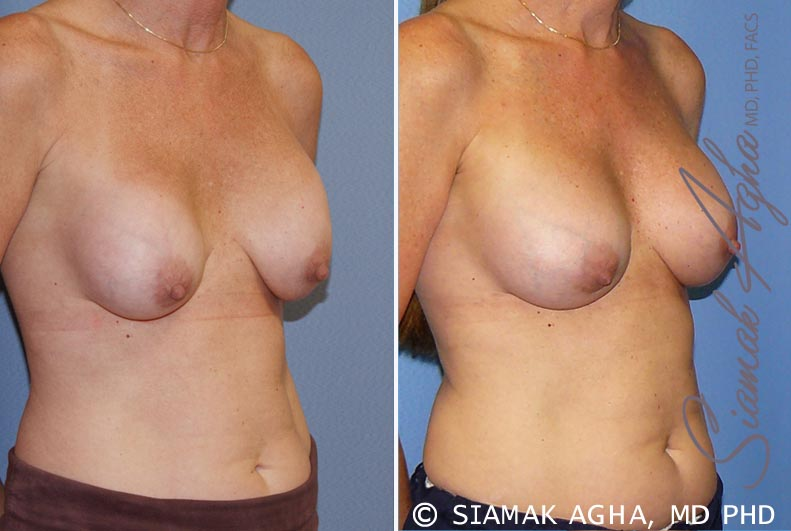 Orange County Newport Beach Breast Augmentation Revision 8 Front Right View