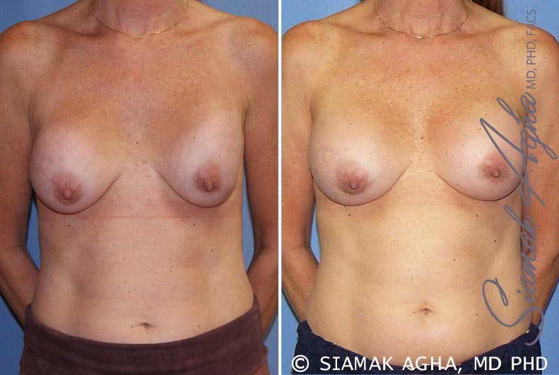 Orange County Newport Beach Breast Augmentation Revision 8 Front View