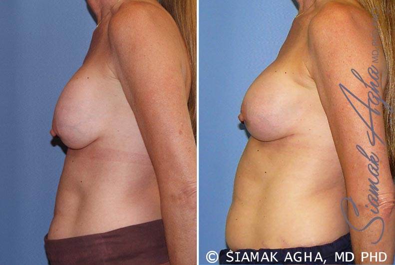 Orange County Newport Beach Breast Augmentation Revision 8 Left View