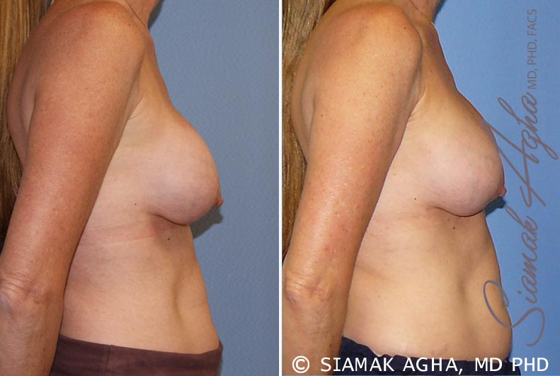 Orange County Newport Beach Breast Augmentation Revision 8 Right View