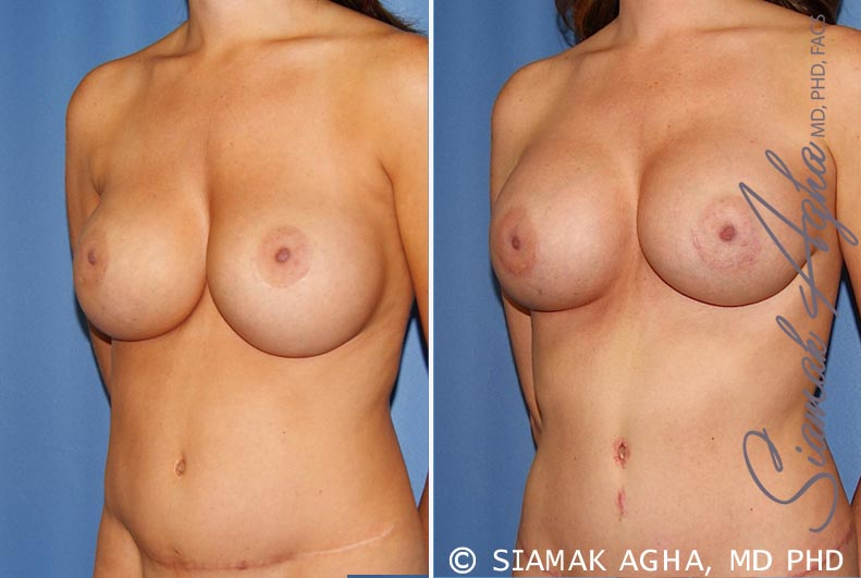 Orange County Newport Beach Breast Augmentation Revision 9 Front Left View