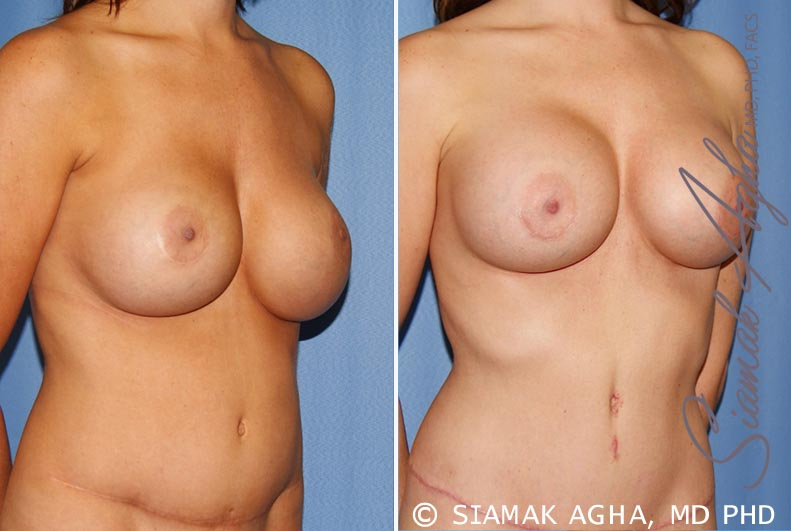 Orange County Newport Beach Breast Augmentation Revision 9 Front Right View