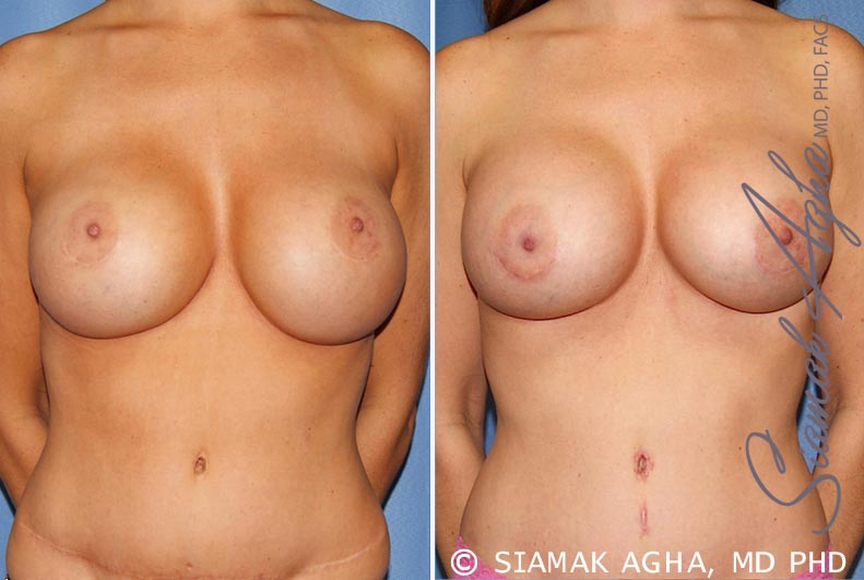 Orange County Newport Beach Breast Augmentation Revision Patient 9