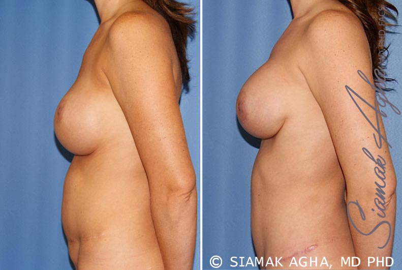 Orange County Newport Beach Breast Augmentation Revision 9 Left View