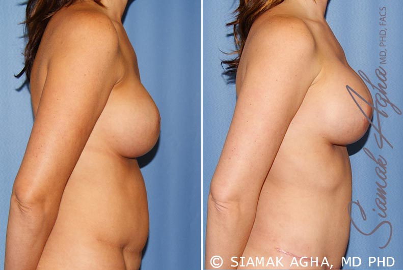 Orange County Newport Beach Breast Augmentation Revision 9 Right View