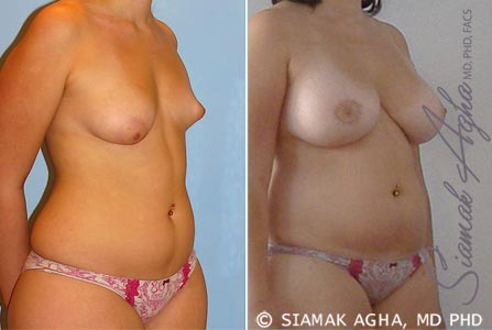 Orange County Newport Beach Breast Fat Transfer 1 Front Right View