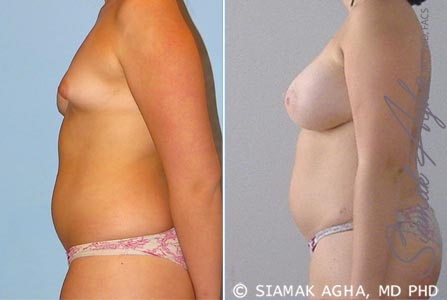 Orange County Newport Beach Breast Fat Transfer 1 Left View