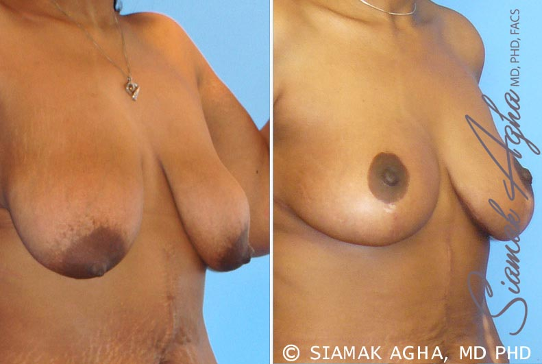 Orange County Newport Beach Breast Lift 1 Front Right View