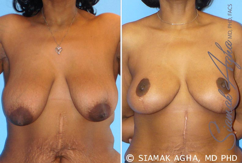 Orange County Newport Beach Breast Lift Patients