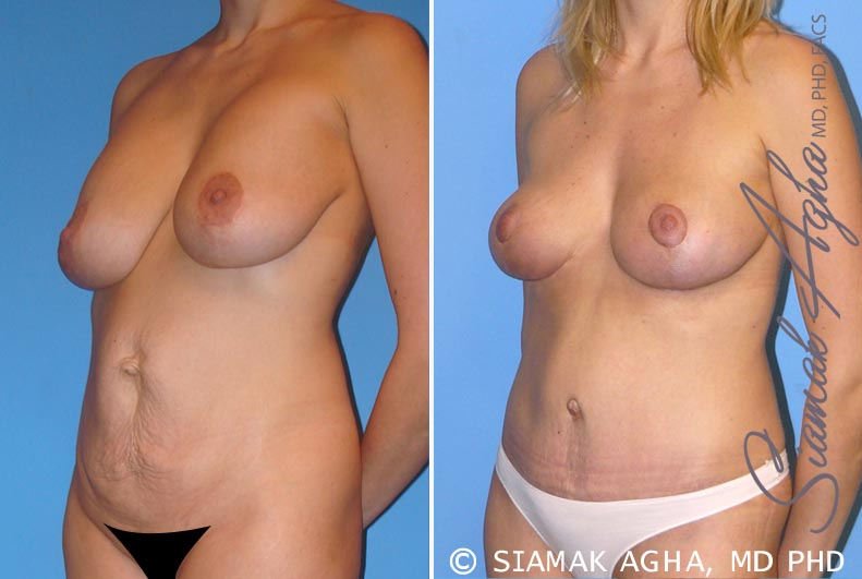Orange County Newport Beach Breast Lift 2 Front Left View