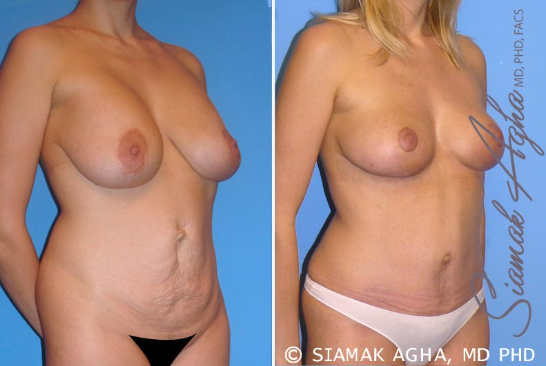 Orange County Newport Beach Breast Lift 2 Front Right View