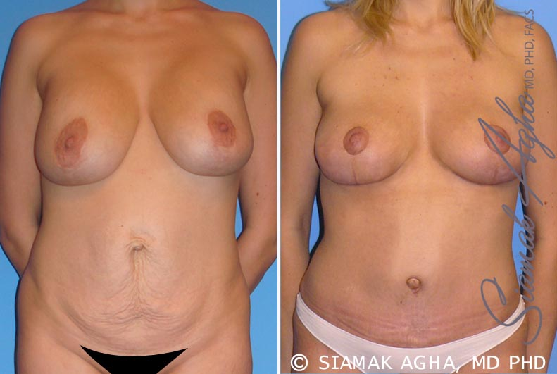 Orange County Newport Beach Breast Lift 2 Front View
