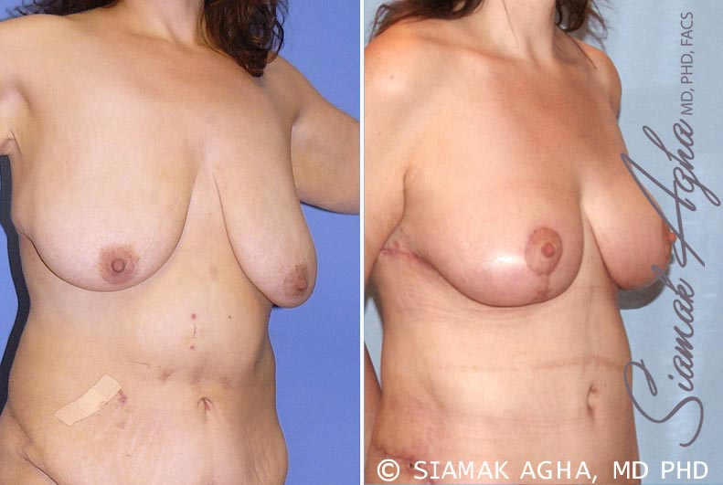 Orange County Newport Beach Breast Lift 3 Front Right View