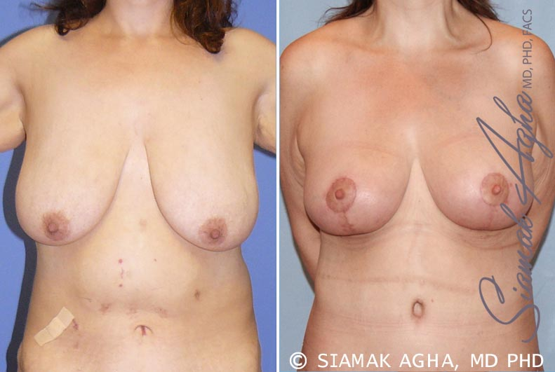 Orange County Newport Beach Breast Lift 3 Front View