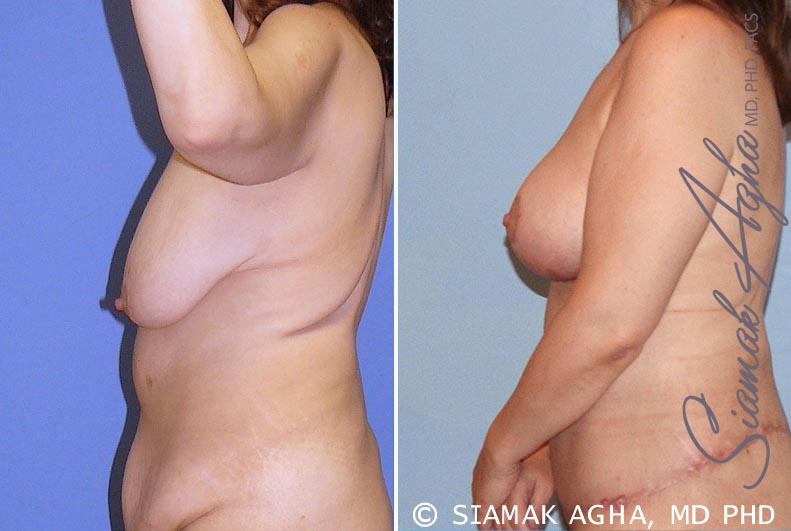 Orange County Newport Beach Breast Lift 3 Left View