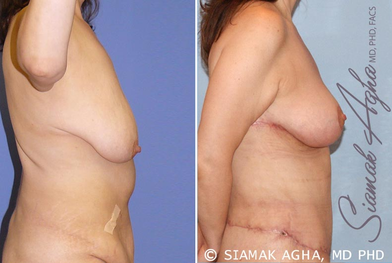 Orange County Newport Beach Breast Lift 3 Right View