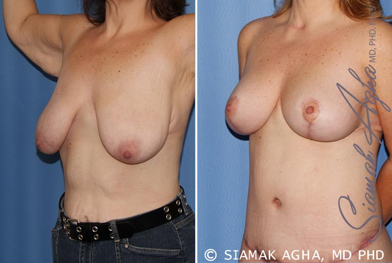 Orange County Newport Beach Breast Lift 4 Front Left View