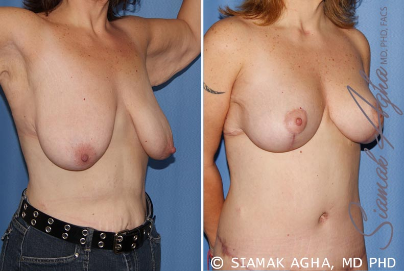 Orange County Newport Beach Breast Lift 4 Front Right View