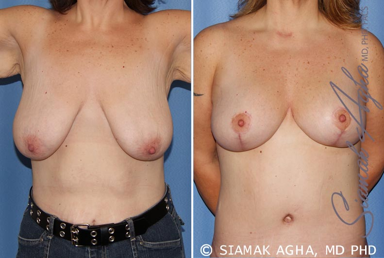 Orange County Newport Beach Breast Lift 4 Front View