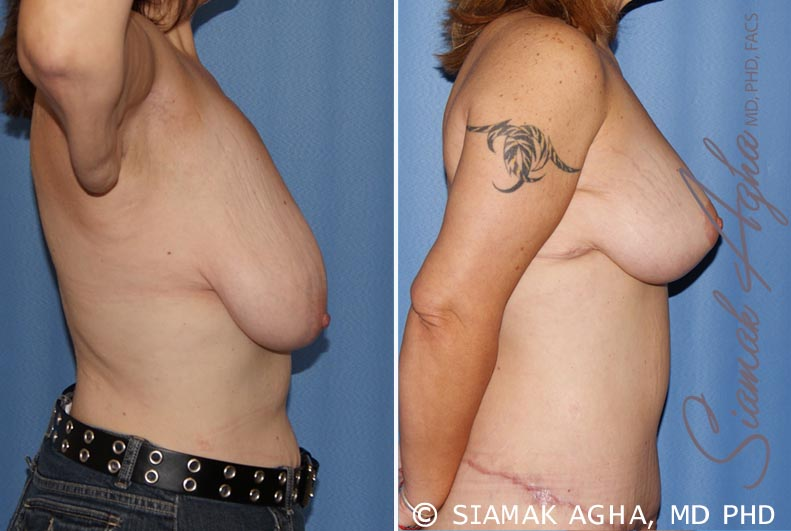 Orange County Newport Beach Breast Lift 4 Right View
