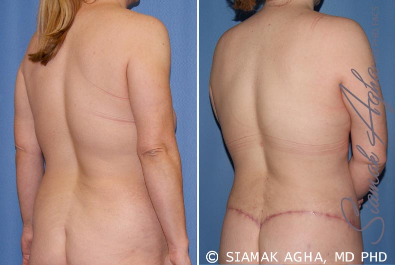 Orange County Newport Beach Breast Lift 5 Back Right View