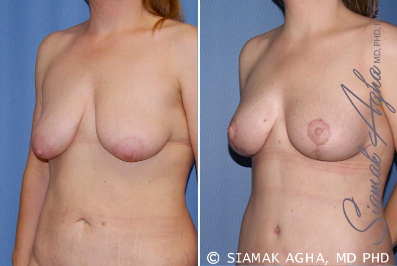 Orange County Newport Beach Breast Lift 5 Front Left View