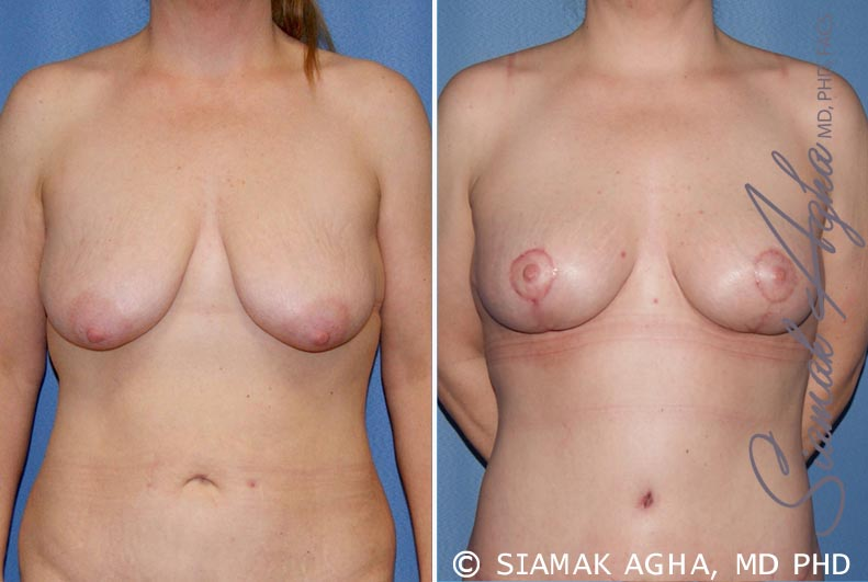Orange County Newport Beach Breast Lift 5 Front View
