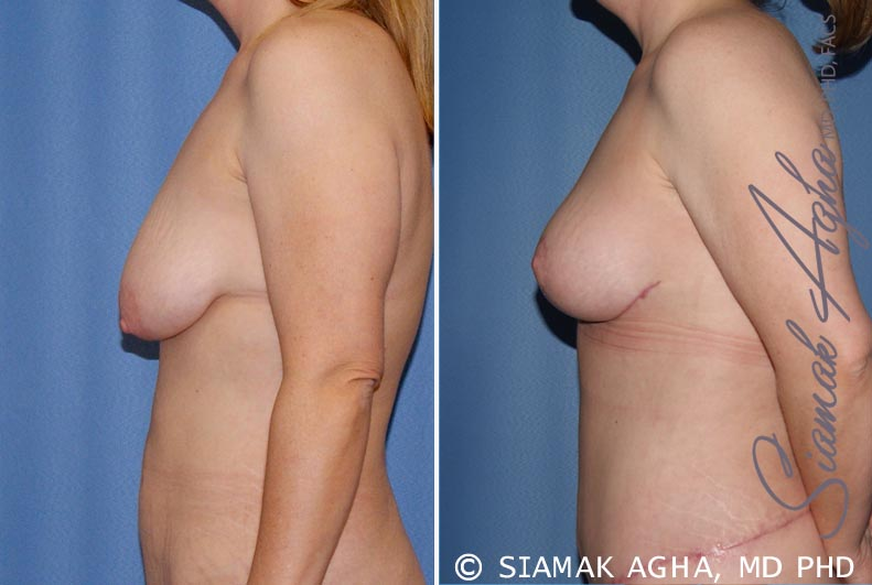 Orange County Newport Beach Breast Lift 5 Left View