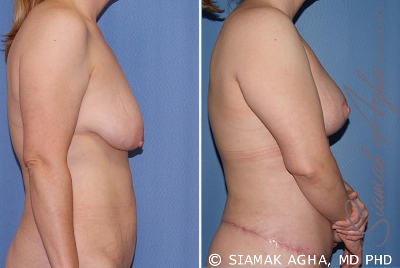 Orange County Newport Beach Breast Lift 5 Right View