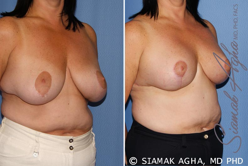 Orange County Newport Beach Breast Lift 6 Front Right View