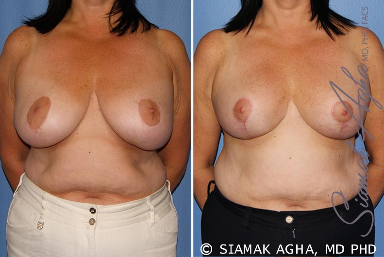 Orange County Newport Beach Breast Lift 6 Front View