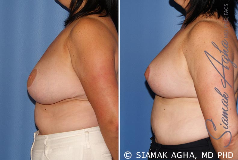 Orange County Newport Beach Breast Lift 6 Left View
