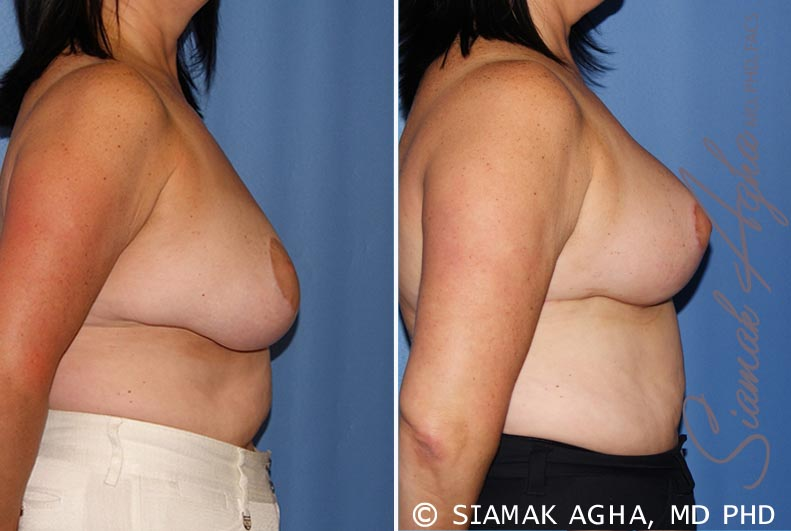 Orange County Newport Beach Breast Lift 6 Right View