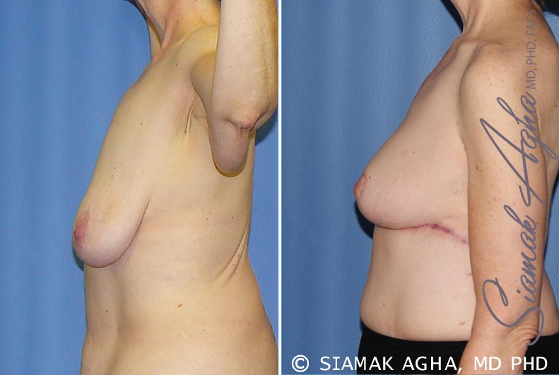 Orange County Newport Beach Breast Lift 7 Left View