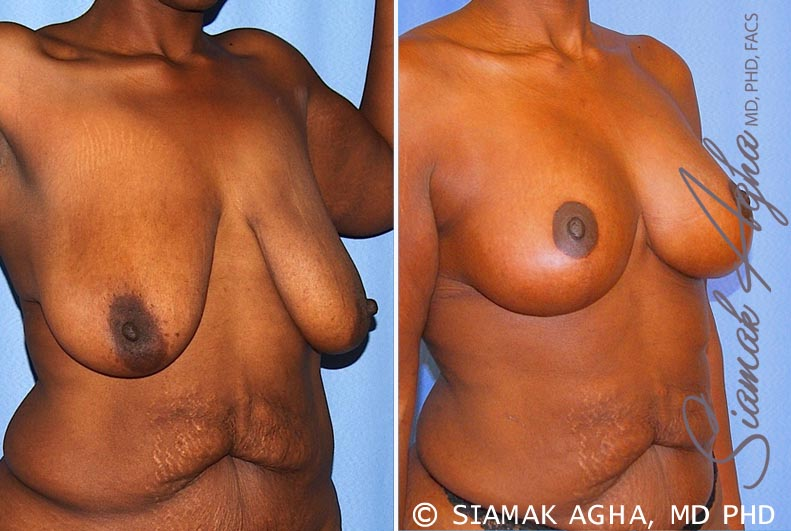 Orange County Newport Beach Breast Lift 8 Front Right View