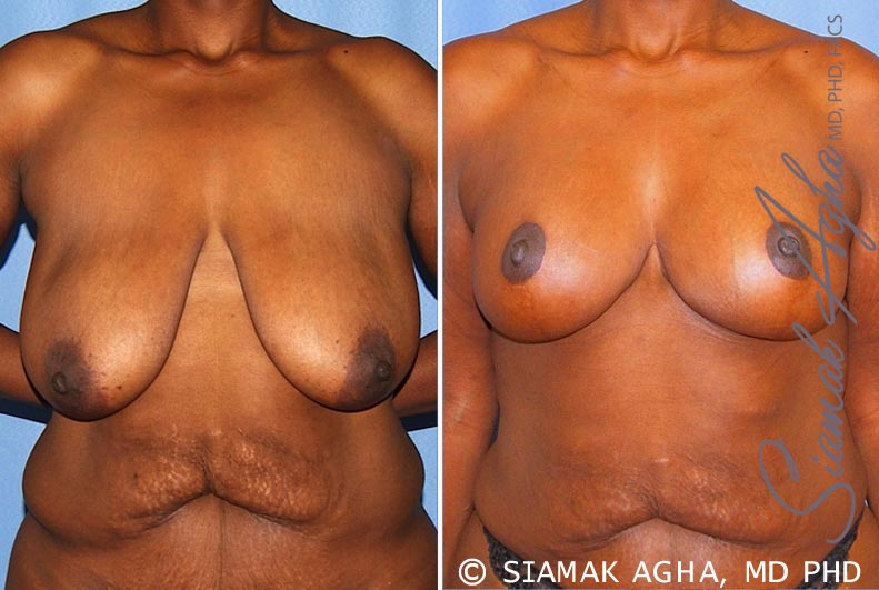 Orange County Newport Beach Breast Lift 8 Front View
