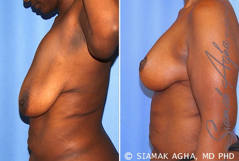 Orange County Newport Beach Breast Lift 8 Left View