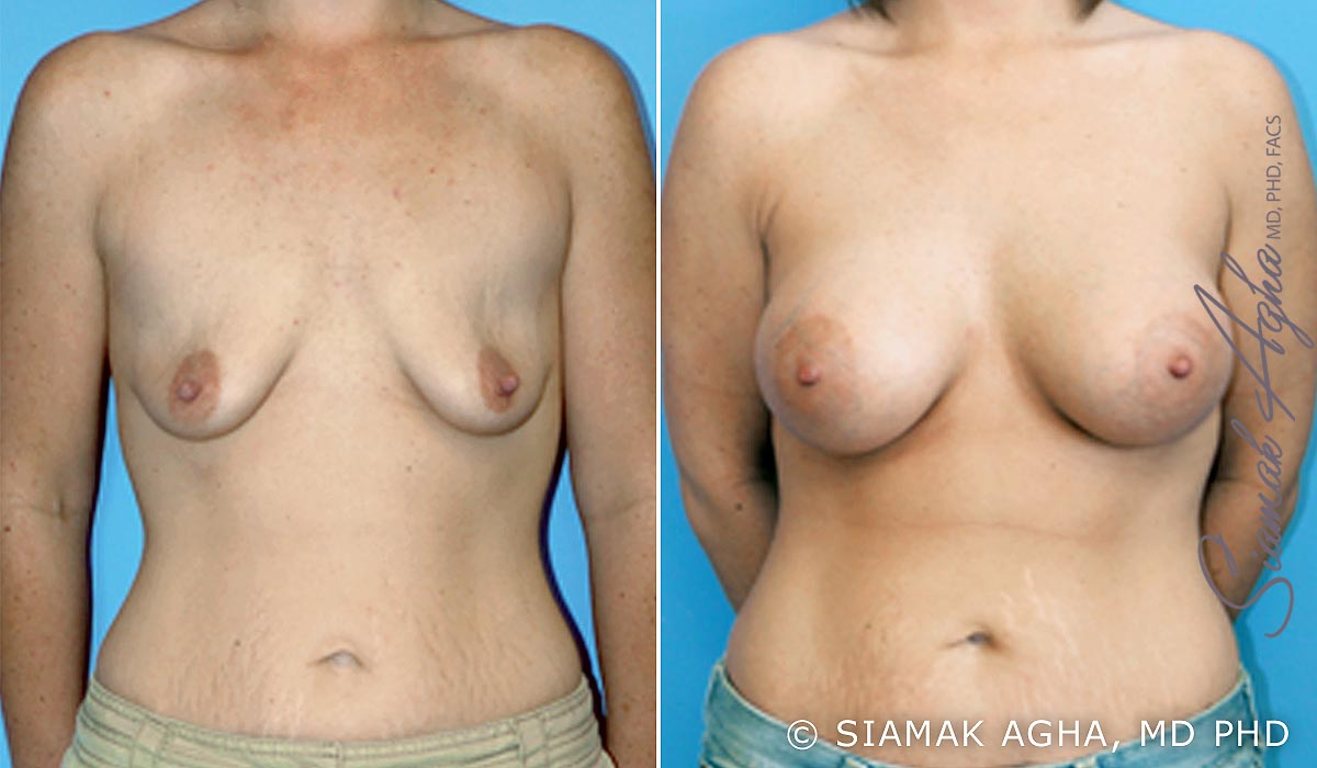Orange County Newport Beach Breast Lift with Augmentation 1 Front View
