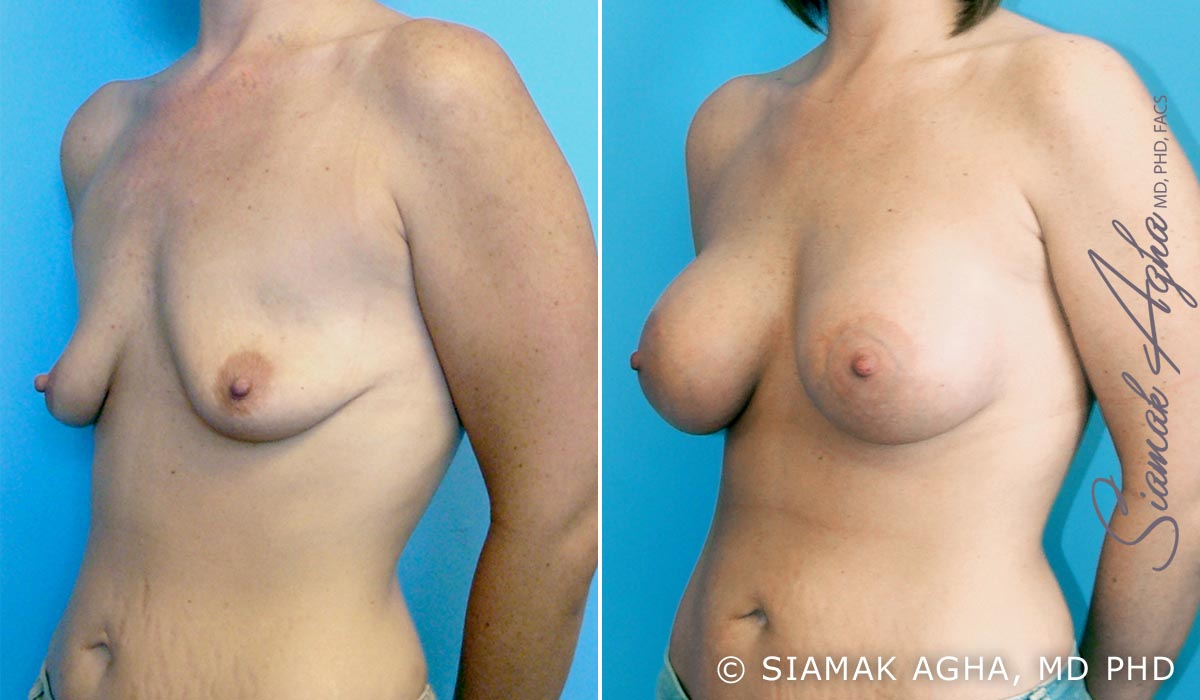 Orange County Newport Beach Breast Lift with Augmentation 1 Front Left View