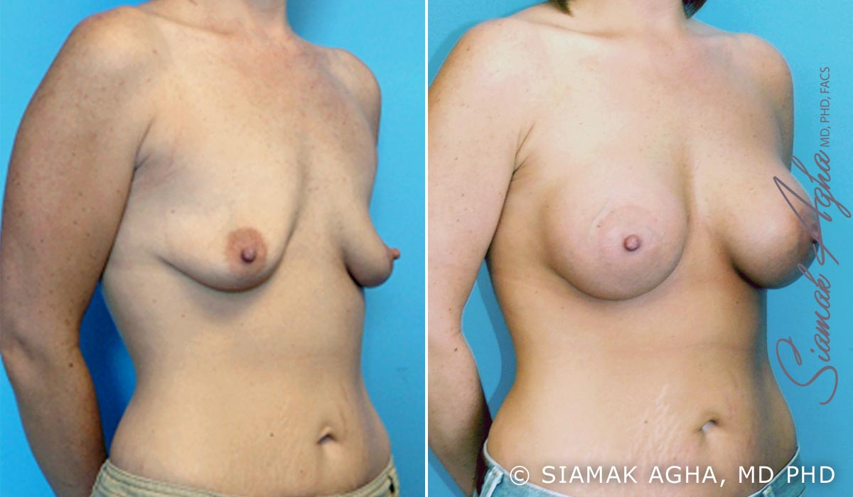 Orange County Newport Beach Breast Lift with Augmentation 1 Front Right View