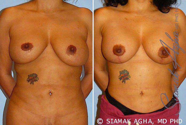 Orange County Newport Beach Breast Lift with Augmentation 10 Front View