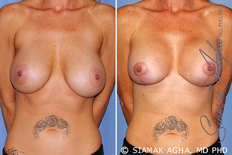 Orange County Newport Beach Breast Lift with Augmentation 11 Front View