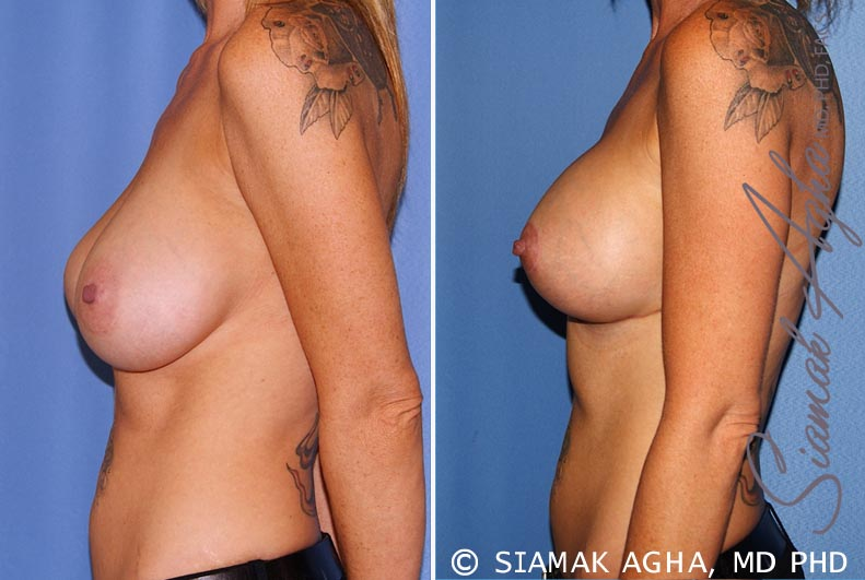 Orange County Newport Beach Breast Lift with Augmentation 11 Left View